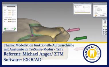 Model. funkt. Aufbissschiene mit Anatomie im TruSmile-Modus - Teil 1