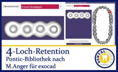 4-Loch-Retention - nach Michael Anger für die Pontic-Bibliothek für exocad