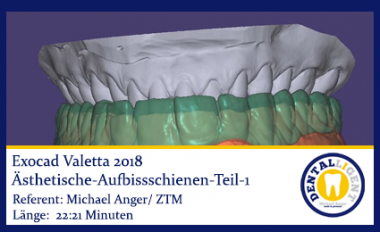 Exocad-Valetta-2018-Ästhetische-Aufbissschienen-Teil-1