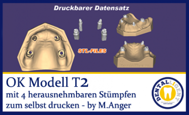 OK-Modell T2-STL Daten zum selbst drucken