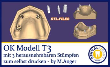 OK-Modell T3-STL Daten zum selbst drucken