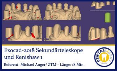 2018-Exocad-Sekundärteleskope und Renishaw Teil 1
