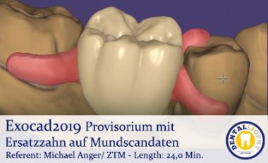 2019-Exocad - Provisorium mit Ersatzzahn auf Mundscandaten