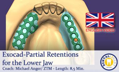 2019-Exocad-Partial Retentions for the Lower Jaw  -ENGLISH
