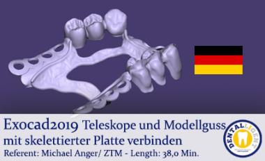 2019-Exocad - Teleskope und Modellguss mit skelettierter Platte verbinden