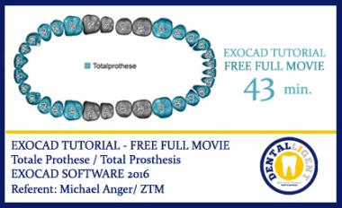 EXOCAD TUTORIAL - FREE FULL MOVIE -  Totale Prothese / Total Prosthesis - EXOCAD SOFTWARE 2016