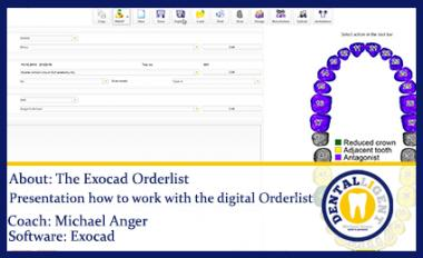 Free full EXOCAD SUPPORT-Video - About: The Exocad Orderlist