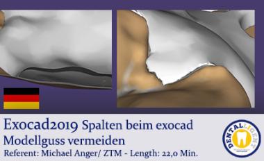 2019-Exocad - Spalten beim exocad Modellguss vermeiden