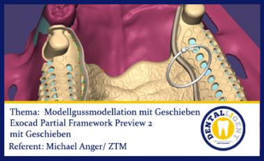 FREE VIDEO - NEW EXOCAD TUTORIAL 2016 -Modellgussmodellation mit Geschieben
