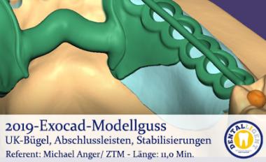 2019-Exocad Modellguss UK-Bügel, Abschlussleisten, Stabilisierungen
