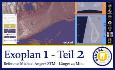 Exocad-2019 EXOPLAN 1 - Teil 2