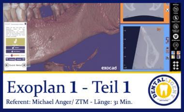 2019-Exocad  EXOPLAN 1 - Teil 1