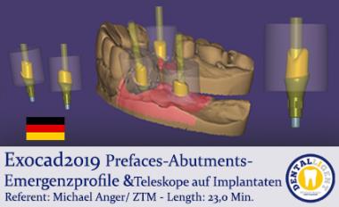 2019-Exocad-Prefaces-Abutments-Emergenzprofile &Teleskope auf Implantaten