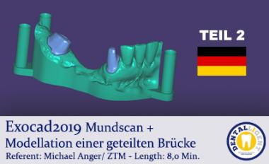 2019-Exocad - TEIL2 - Mundscan + Modellation einer geteilten Brücke