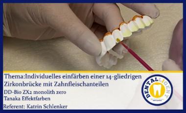 Individuelles einfärben einer 14-gliedrigen Zirkonbrücke mit Zahnfleischanteilen