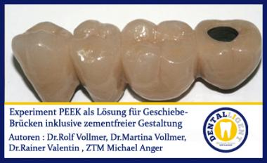 GRATIS - Experiment - PEEK als Lösung für Geschiebe-Brücken inkl. zementfreier Gestaltung