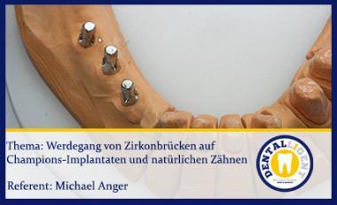 Werdegang von Zirkonbrücken auf Champions-Implantaten und natürlichen Zähnen