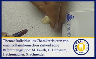 individuelles Charakterisieren einer vollanatomischen Zirkonkrone