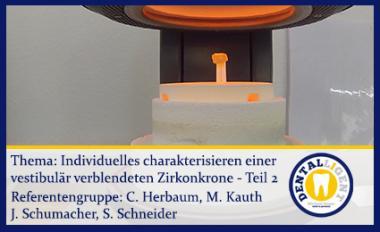 Individuelles charakterisieren einer vestibulär verblendeten Zirkonkrone Teil 2