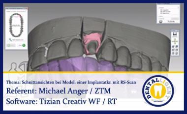 Schnittansichten bei Modellation einer Implantatkrone mit Renishaw-Scan