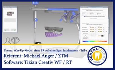 Wax-Up-Modellation einer Brücke auf einteiligen Implantaten - Teil 1