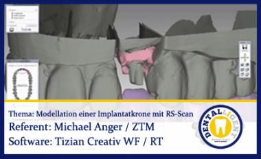 Modellation einer Implantatkrone mit Renishaw-Scan