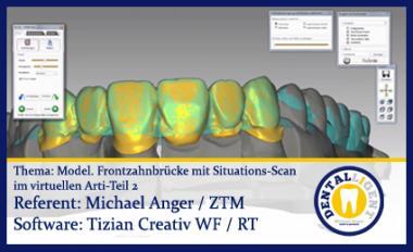 Modellation einer Frontzahnbrücke mit Situations-Scan im virtuellen Arti - Teil 2