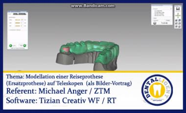 Modellation einer Reiseprothese (Ersatzprothese) auf Teleskopen  (als Bilder-Vortrag)