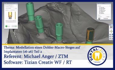 Modellation eines Dolder-Macro-Steges auf Implantaten (16-26)  - Teil 2