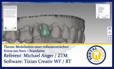 Modellation einer vollanatomischen  Krone aus Itero – Scandaten