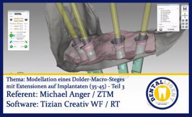 Modellation eines Dolder-Macro-Steges  mit Extensionen auf Implantaten (35-45) Teil 3