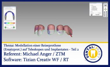 Modellation einer Reiseprothese (Ersatzprothese) auf Teleskopen und Implantaten - Teil 2