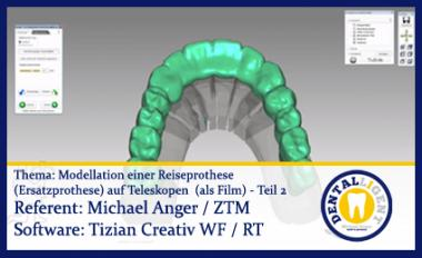 Modellation einer Reiseprothese (Ersatzprothese) auf Teleskopen  (als Film) Teil - 2