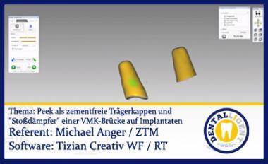 """Peek als zementfreie Trägerkappen und """"Stoßdämpfer"""" einer VMK-Brücke auf Implantaten"""