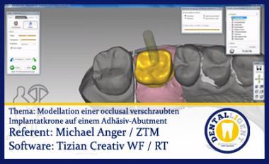Modellation einer occlusal verschraubten Implantatkrone auf einem Adhäsiv-Abutment
