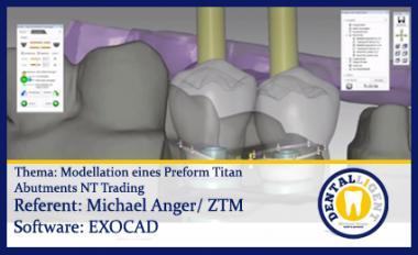 Modellation eines Preform Titan Abutments NT Trading