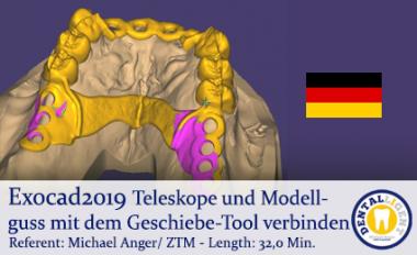 2019-Exocad - Teleskope und Modellguss mit dem Geschiebe-Tool verbinden
