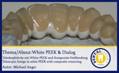 GRATIS-White PEEK & Dialog