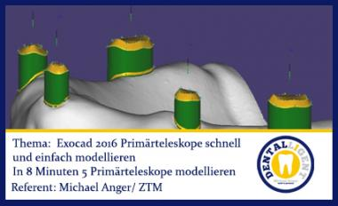 FREE - NEW EXOCAD TUTORIAL 2016 Primärteleskope schnell und einfach modellieren