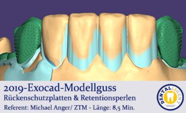 2019-Exocad-Modellguss Rückenschutzplatten & Retentionsperlen