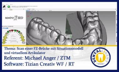 Scan einer FZ-Brücke mit Situationsmodell und virtuellem Artikulator