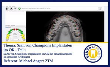 GRATIS - Scan von Champions Implantaten im OK - Teil 1
