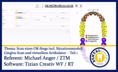 Scan eines OK-Stegs incl. Situ / Gingiva-Scan und virt. Arti. Teil 2