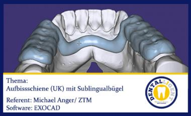 EXOCAD 2016 - Aufbissschiene (UK) mit Sublingualbügel