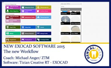 The new Workflow - EXOCAD