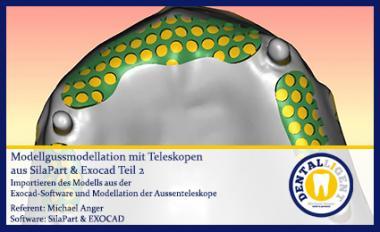 Modellgussmodellation mit Teleskopen aus SilaPart & Exocad Teil 1
