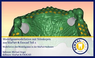 Modellgussmodellation mit Teleskopen aus SilaPart & Exocad Teil 2