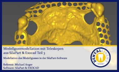 Modellgussmodellation mit Teleskopen aus SilaPart & Exocad Teil 3