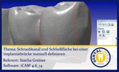 iCAM 4.6 Schraubkanal und Schliessfläche manuell festlegen