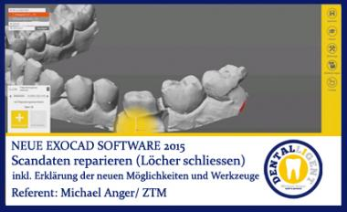 Scandaten reparieren (Löcher schliessen) - Exocad 2015